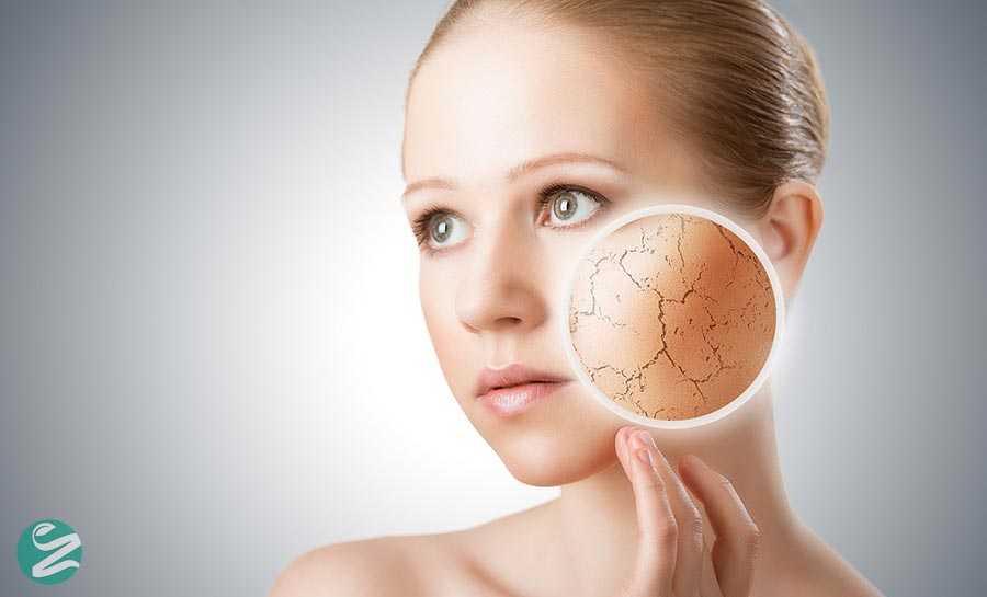 انواع پوست های بدن را می شناسید؟