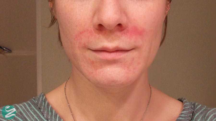 آیا پوست شما به نور خورشید حساس است؟