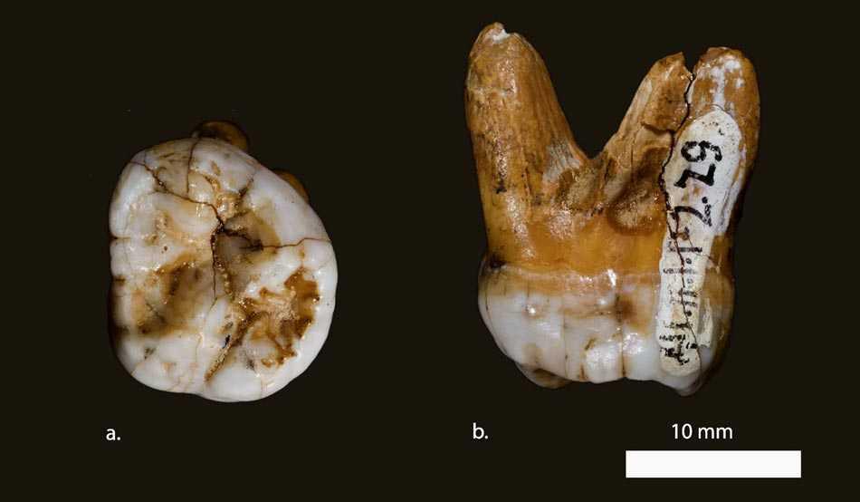 دندان بشر اولیه
