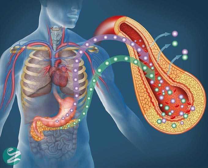 5 تفاوت اصلی دیابت نوع 1 و دیابت نوع 2