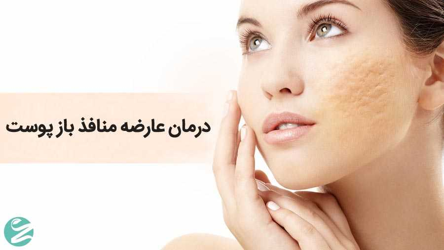 درمان عارضه منافذ باز پوست صورت