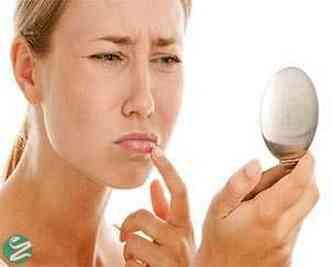 درمان خانگی از بین بردن خشکی لبها