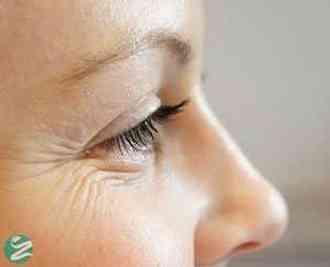 3 روش برای جلوگیری از چین و چروک شدن پوست