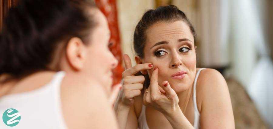 روشهای درمان سریع و خانگی جوش صورت
