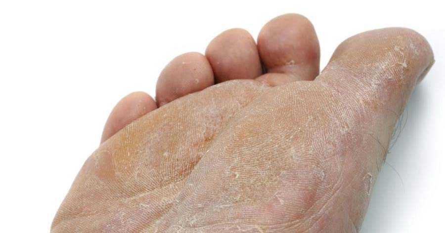 عفونت پوست