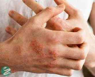 بیماری اگزما و راه های درمان اگزما