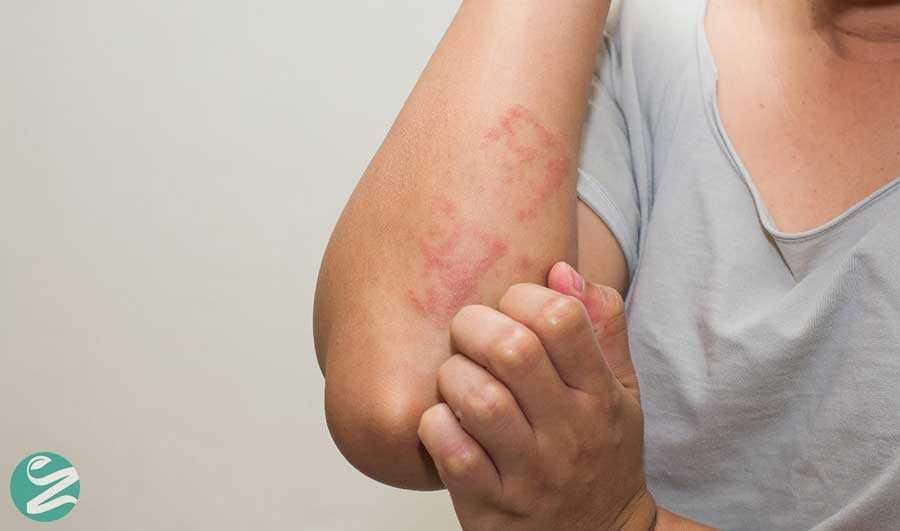 با انواع بیماری اگزما آشنا شوید
