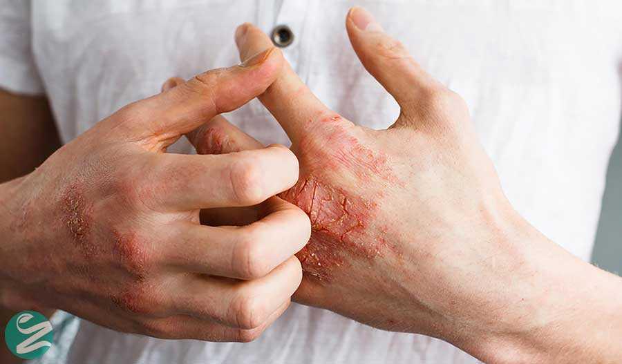 آیا بیماری اگزما همان بیماری درماتیت است؟