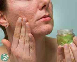 8 روغن گیاهی موثر برای درمان جوش صورت و رفع آکنه