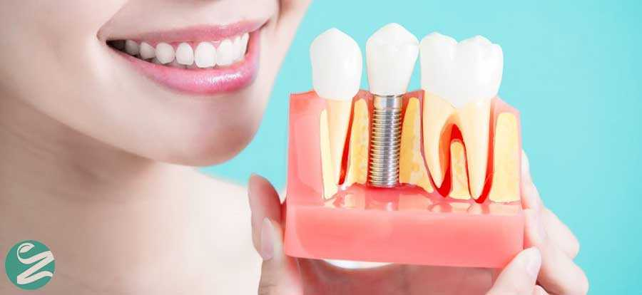 ایمپلنت دندان خوب یا بد؟ قبل از ایمپلنت این 10 نکته را بخوانید!