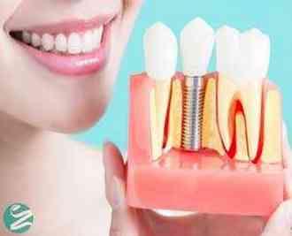 ایمپلنت دندان چیست؟ قبل از کاشت ایمپلنت دندانی بخوانید