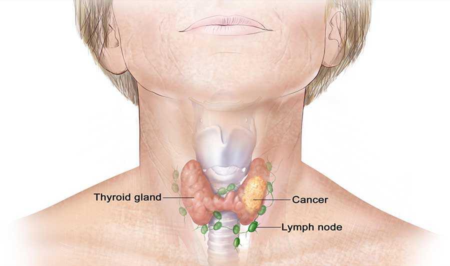 سرطان تیروئید