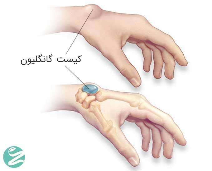 علت و درمان کیست مچ دست گانگلیون