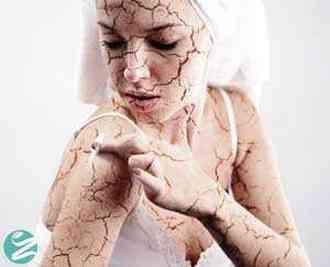 10 مرطوب کننده پوست برای درمان خشکی پوست