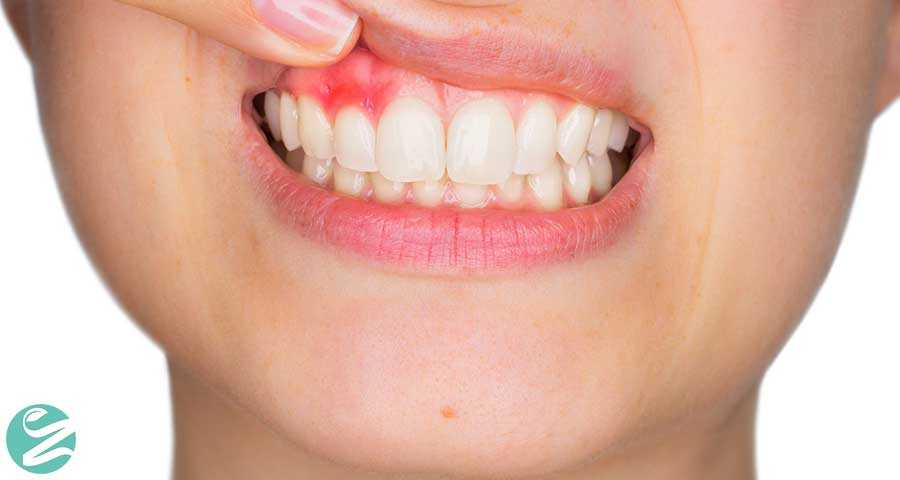 عفونت دندان یا آبسه لثه چیست؟