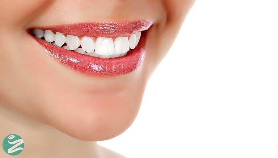 سفید کردن دندان ها با 13 روش خانگی و ارزان