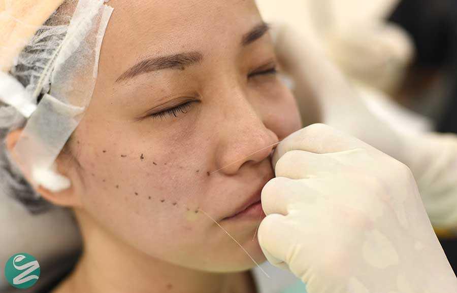 لیفت صورت با نخ چیست و چطور باعث جوانسازی پوست میشود؟