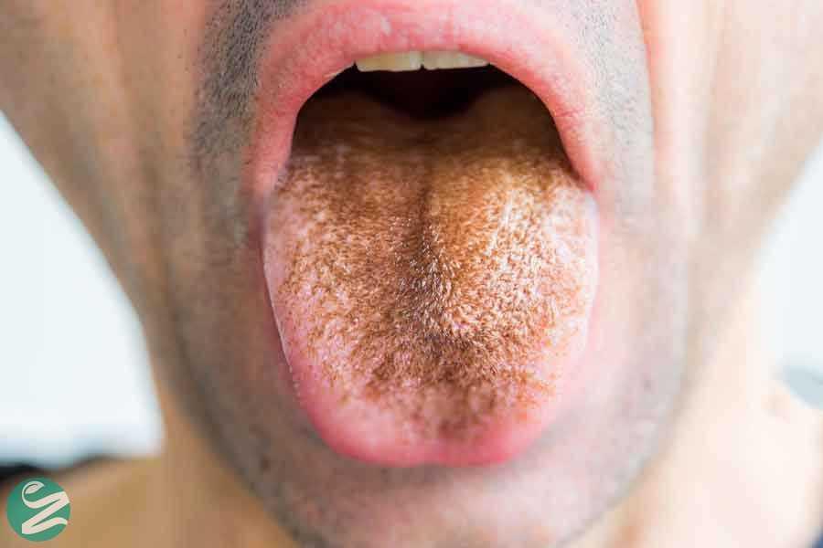 زبان سیاه مودار