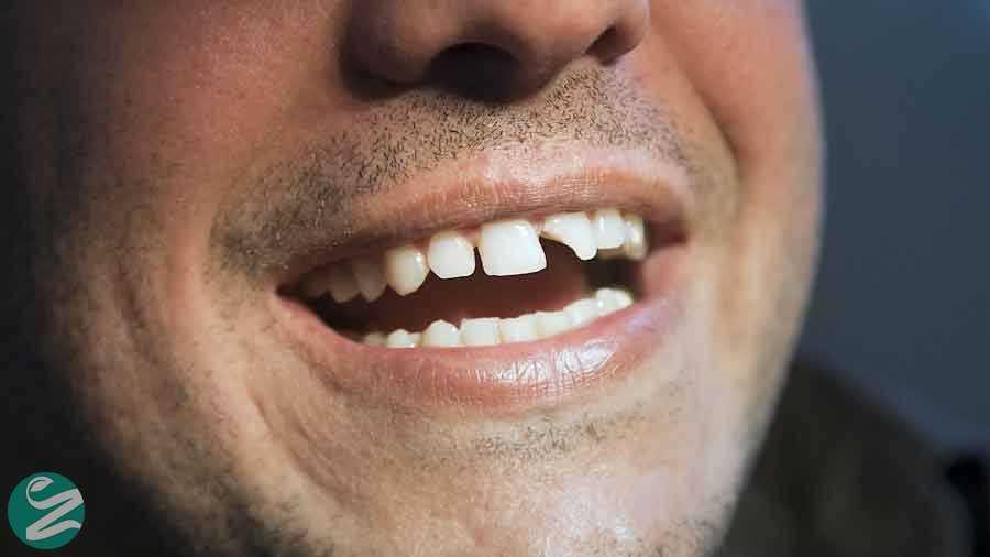 دندان ساییده شده