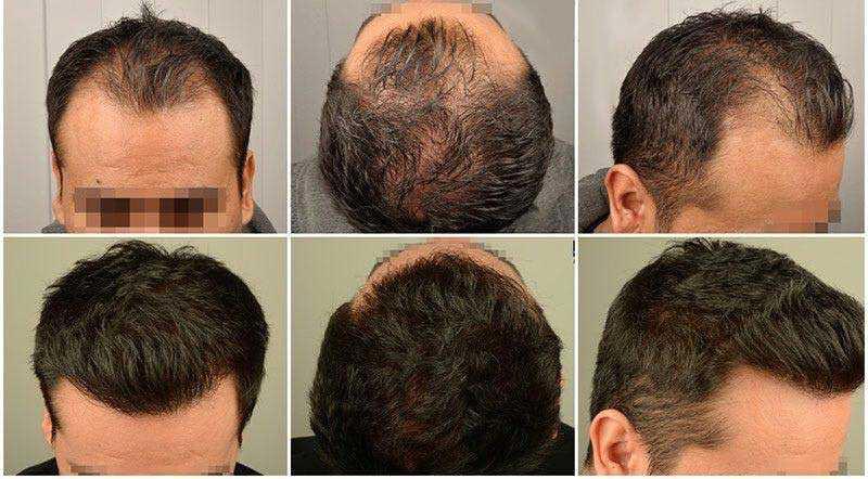 کاشت مو به روش SUT چیست؟