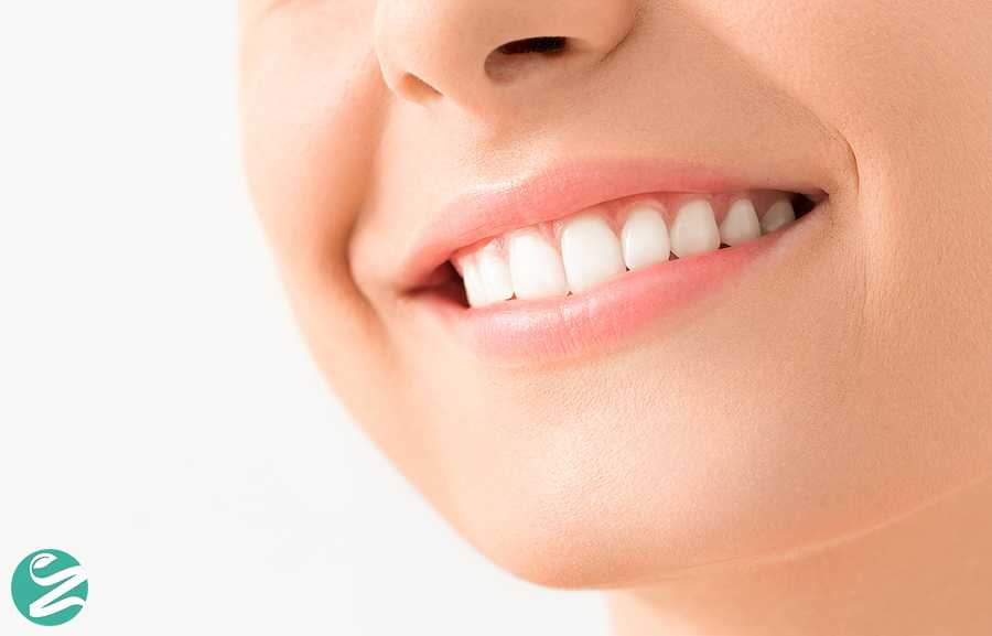 بلیچینگ دندان (سفید کردن دندان ها)، خوب است یا بد؟