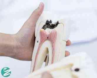 علت پوسیدگی دندان چیست و چطور از خراب شدن دندان پیشگیری کنیم؟
