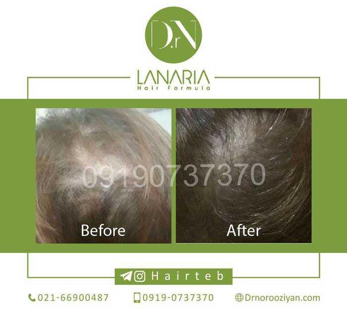 پکیج رشد سریع مو