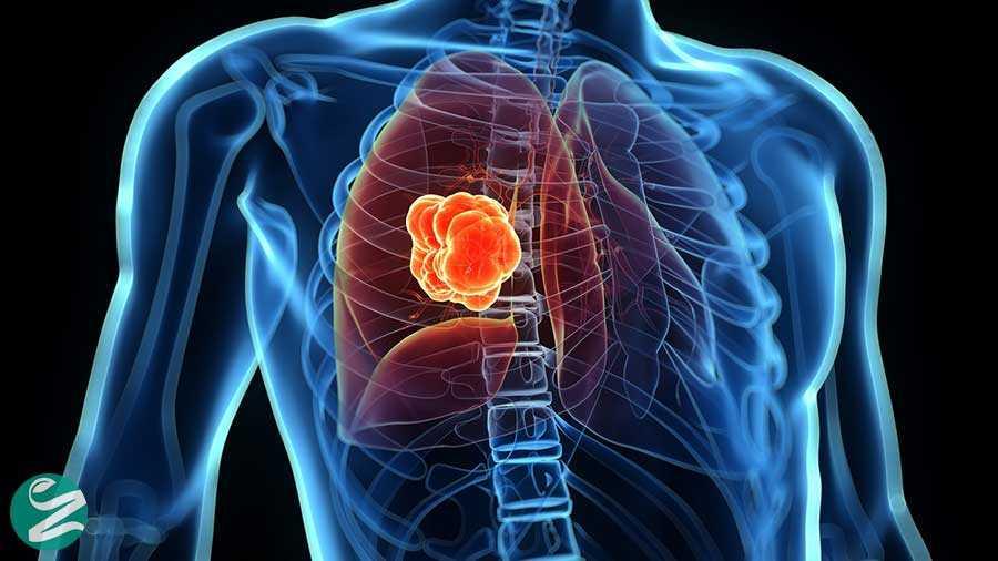 سرطان ریه؛ علائم، تشخیص و درمان این سرطان