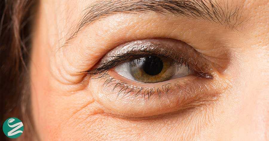 پف چشم - سادهترین روشها برای درمان پف زیر چشم
