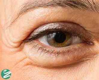 علت پف چشم ها چیست و چه نشانه ای دارد؟