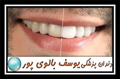 دندانپزشکی یوسف بالوی پور