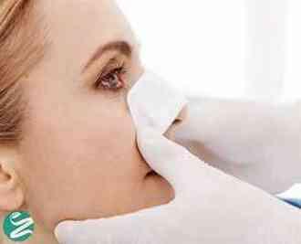 با 9 عوارض عمل بینی آشنا شوید