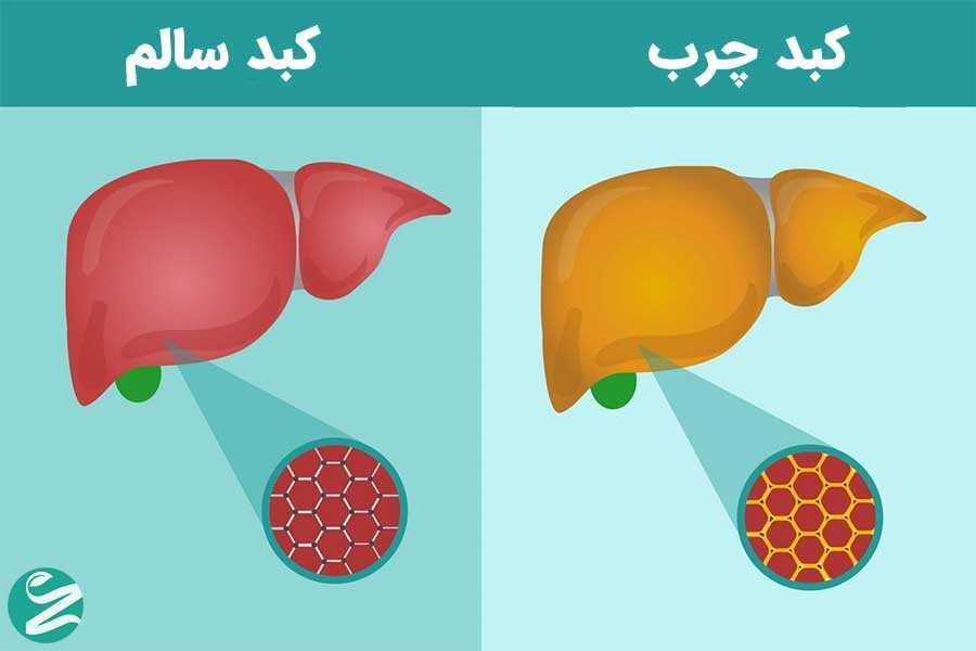 علت کبد چرب چیست و چطور تشخیص داده میشود؟