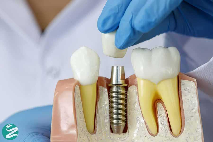 11 عوارض ایمپلنت دندان در کوتاهمدت و بلندمدت