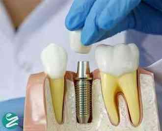 تمام عوارض ایمپلنت دندان در کوتاهمدت و بلندمدت