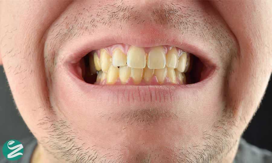 8 مواد غذایی که دندانهای شما را زرد میکند!