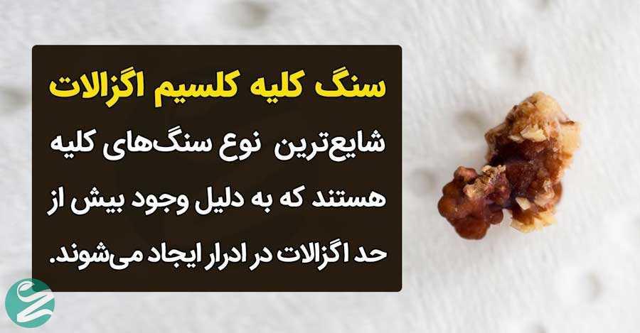 سنگ کلیه کلسیم اگزالات