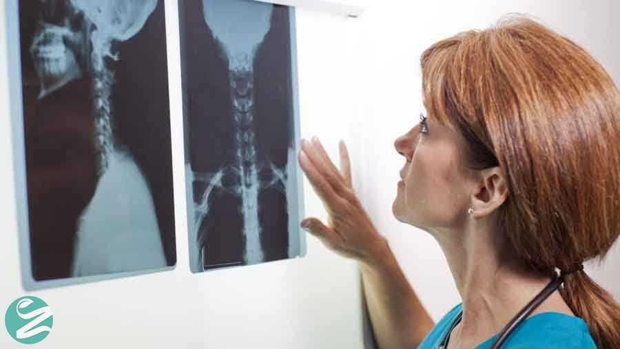 عوامل خطر در سرطان تیروئید