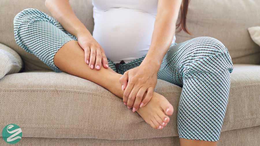 درمان واریس بارداری