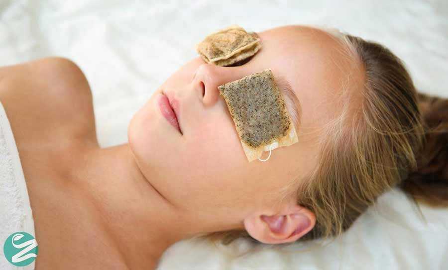 درمان پف چشم با کیسه چای