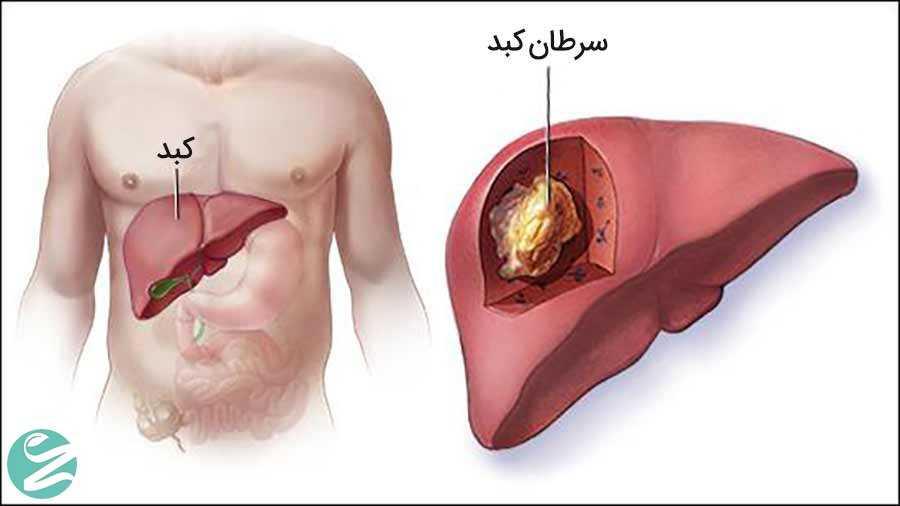 سرطان کبد