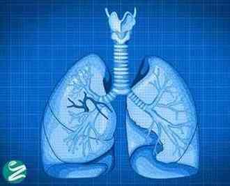 5 روش برای سالم نگه داشتن ریه ها