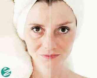 15 ماسک صورت ضد پیری که باید امتحان کنید