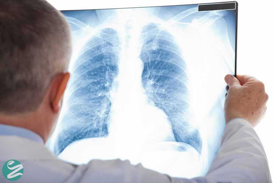 تشخیص عفونت ریه