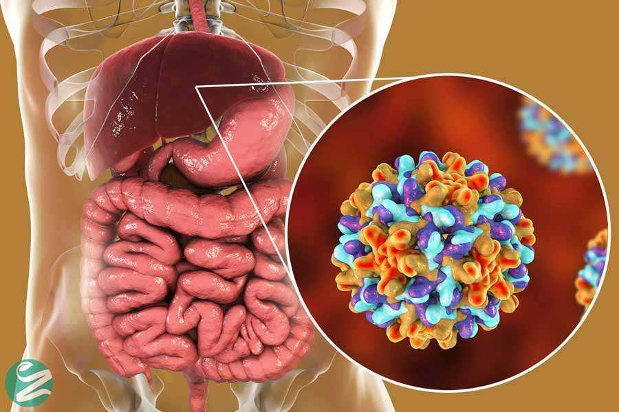 هپاتیت: انواع، علائم، تشخیص و درمان