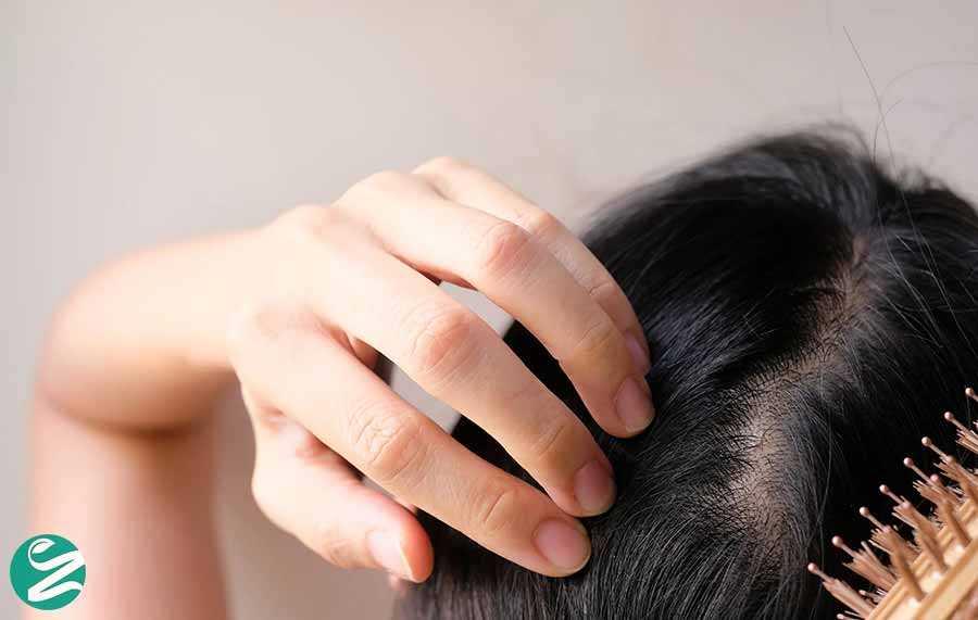 جلوگیری از کمبود آهن و ریزش مو