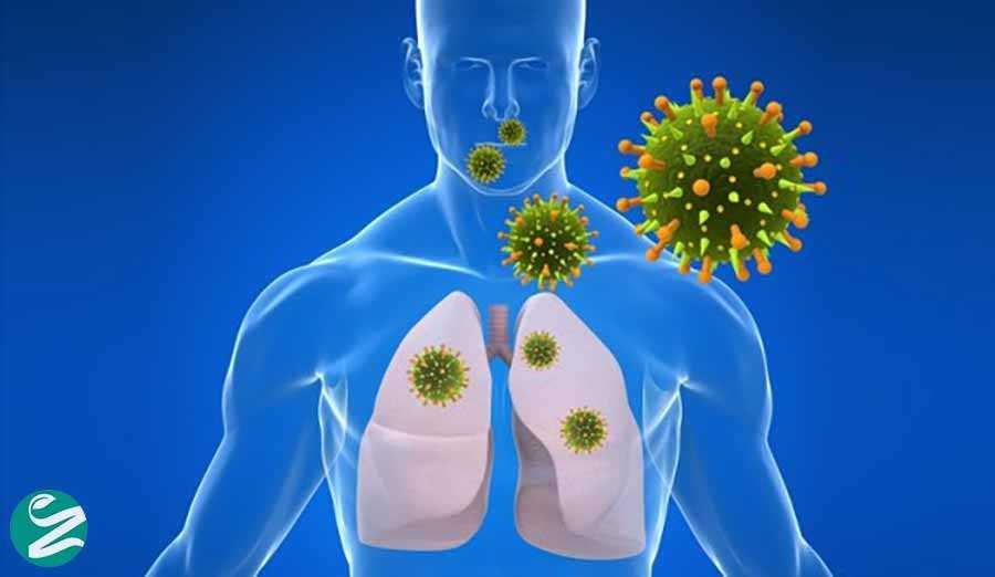 عفونت حاد تنفسی: علائم، تشخیص، درمان و پیشگیری