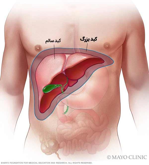 عوارض کبد بزرگ