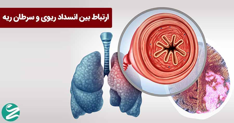 انسداد ریه با سرطان ریه