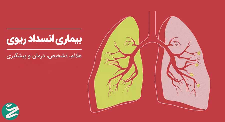 بیماری انسداد ریوی مزمن: علائم، تشخیص، درمان و پیشگیری